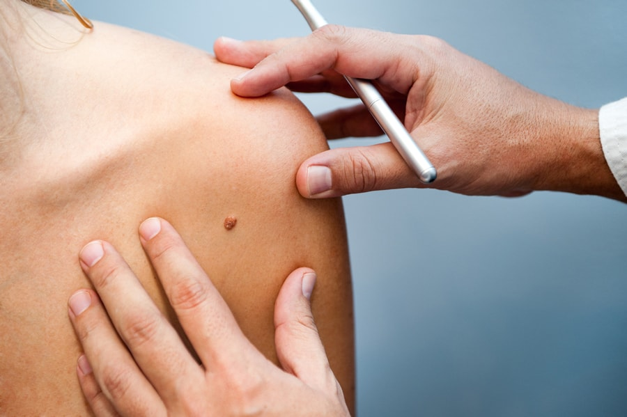 Apps that claim to test moles are missing skin cancers, doctors warn