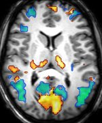 Brain activity measured with functional MRI during sleep (axial slice)