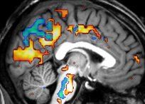 Brain activity measured with functional MRI during sleep (sagittal slice)