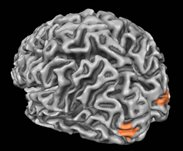 A rendered view of a participant's brain from behind and slightly to the left. The area highlighted is V3B/KO, which is shown by Ban and colleagues to be particularly involved in fusing depth cues to support 3D perception