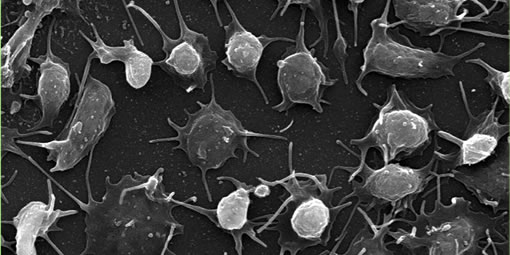 Platelets imaged by scanning electron microscopy