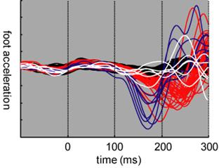 Startle reduces sensorimotor processing time