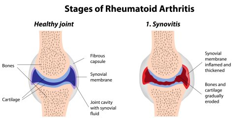 Advancing the Art and Science of Treating RA and ... |Rheumatoid Arthritis Progression