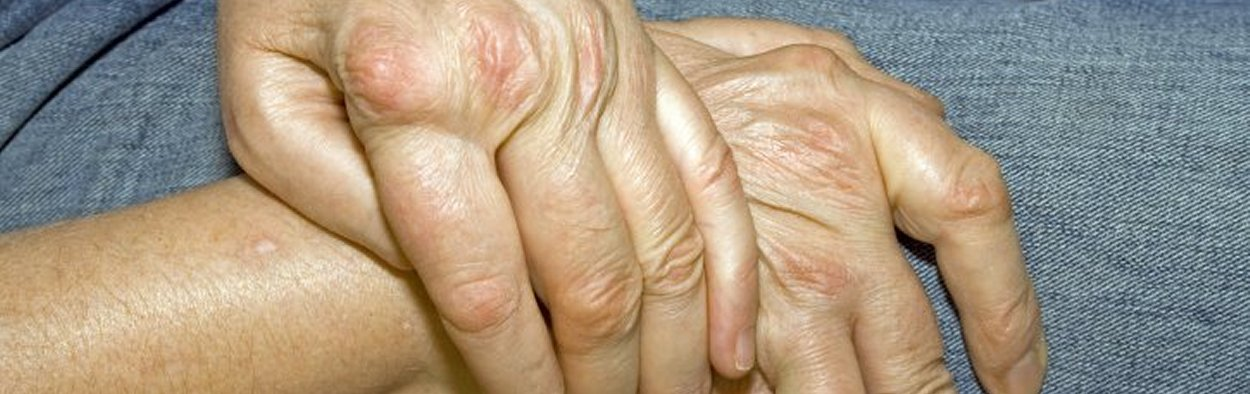 Rheumatoid Arthritis: the Public InformeD (RAPID)