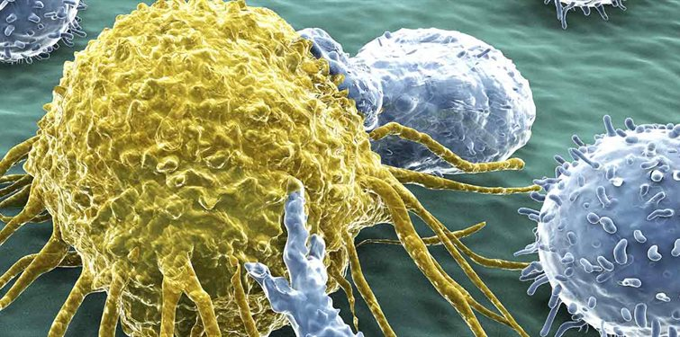 cancer-cell-and-Lymphocytes