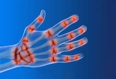 A-TAP: a solid foundation for arthritis discovery
