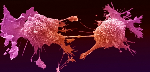 Image for Cancer Studies PhD/MD/MSc by Research