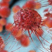 Study discovers breast cancer growth suppressing protein