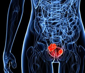 bladder-cancer-cropped