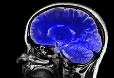 1.Brain Trauma
