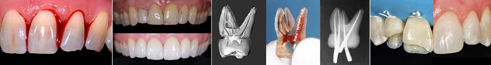 Restorative Dentistry (2)
