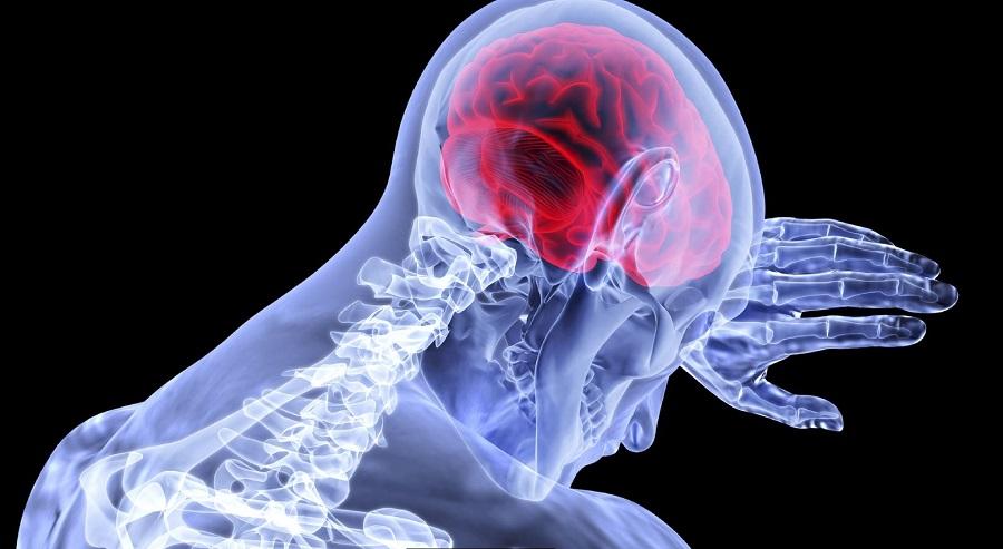 University of Birmingham Enterprise welcomes progress in new treatment for Idiopathic  Intracranial Hypertension