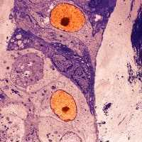 Microscopic close up of cancerous cell