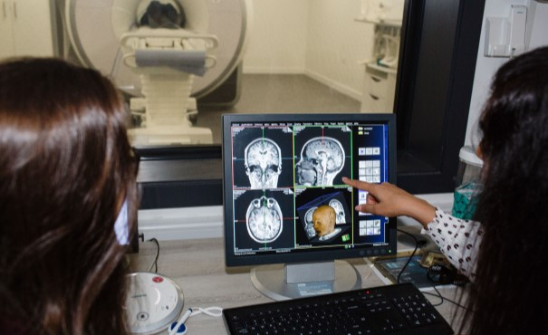 Brain scan on screen with radiographer looking at it