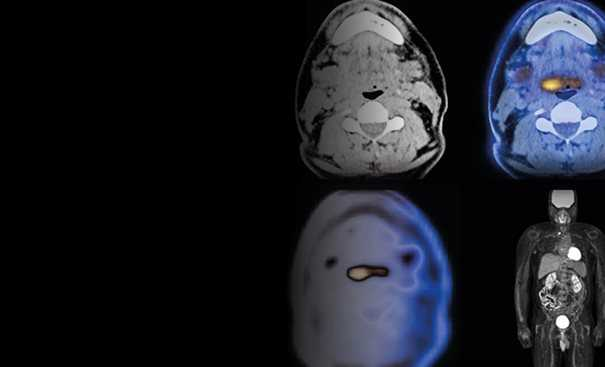 Cancerous brain scan